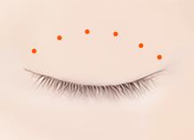 Double Eyelid Surgery | VIP Plastic Surgery Korea