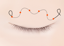Steps for Non-Incision Ptosis Correction Surgery Method