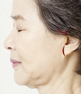 mini facelift surgery method