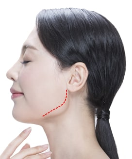 Jaw Reduction Surgery Method – Step 1
