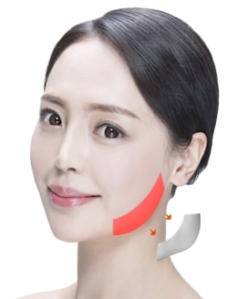 Jaw Reduction Surgery Method – Step 4