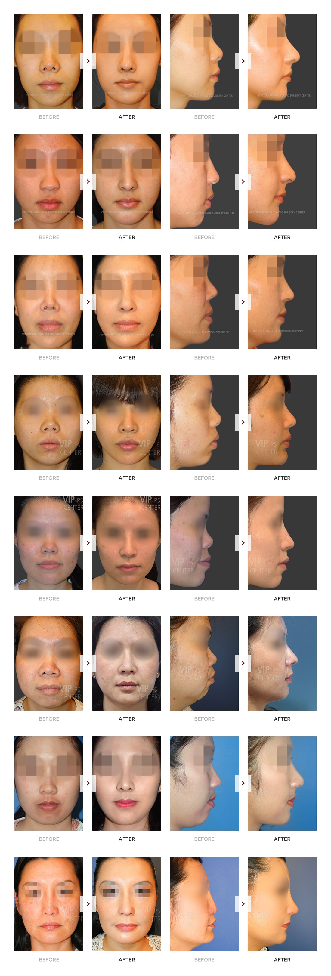 Harmony Rhinoplasty Before and After