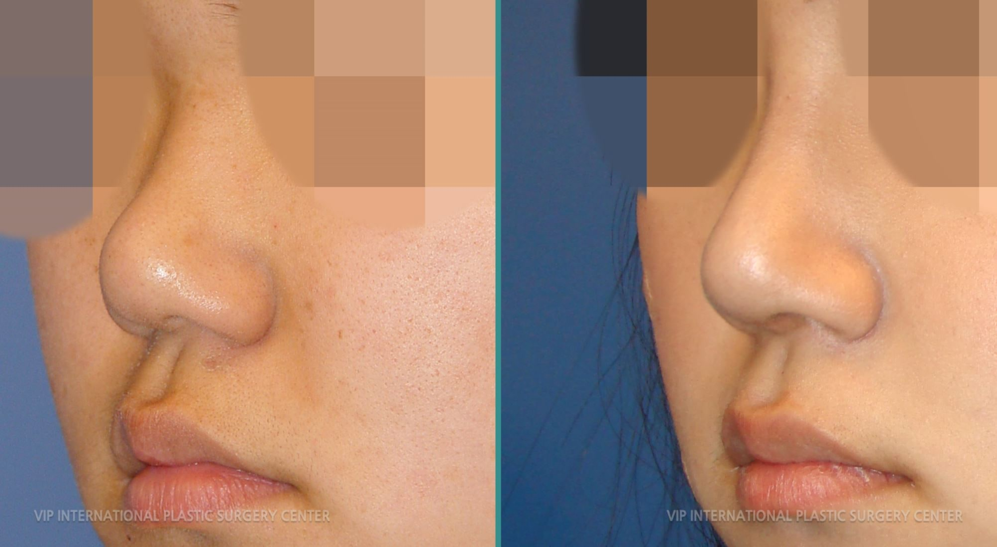 Revision Rhinoplasty Before and After(Stubby Nose)